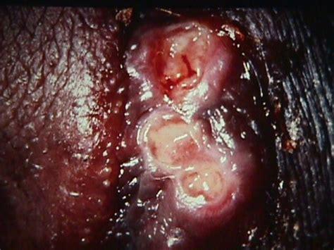 lesions vulva jpg 640x480