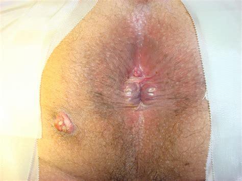anal tear medical jpg 3648x2736